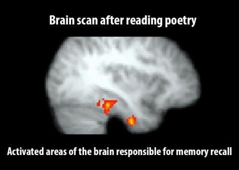 brain-poetry
